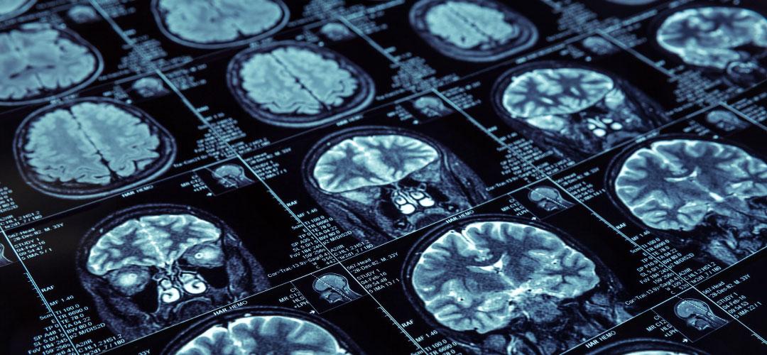 Check-Up Cardiopatia Ischemica | Centro Medico Miranda